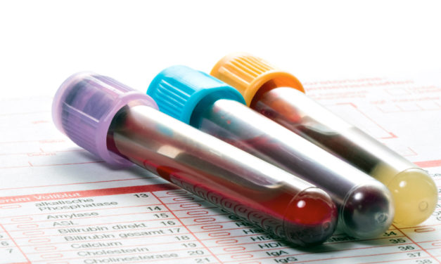 Blood Test To Detect Eight  Cancers Is Promising