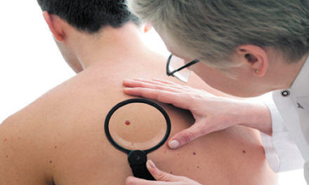 Free Skin Cancer Screening On Friday, 4/20, Reed Dermatology