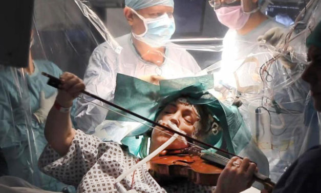 Woman Plays Violin During Unusual Brain Surgery